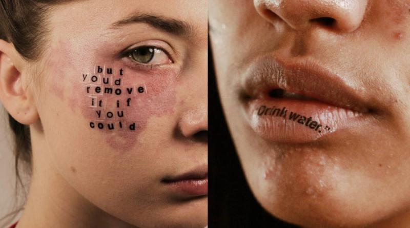 A pele que habito: Skin positivity e o fim do mito do rosto perfeito