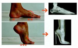 O uso de salto alto altera a forma com que o peso corporal é distribuído nos pés