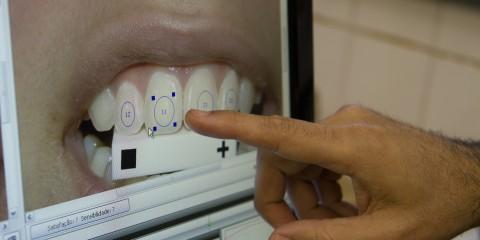 FO – Faculdade de Odontologia